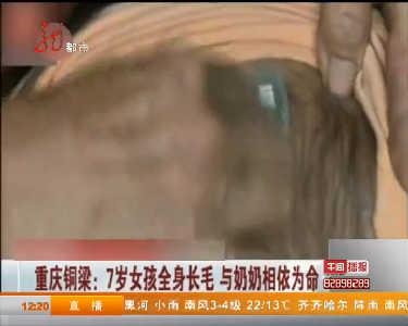 重庆铜梁7岁女孩全身长毛与奶奶相依为命| 黑龙