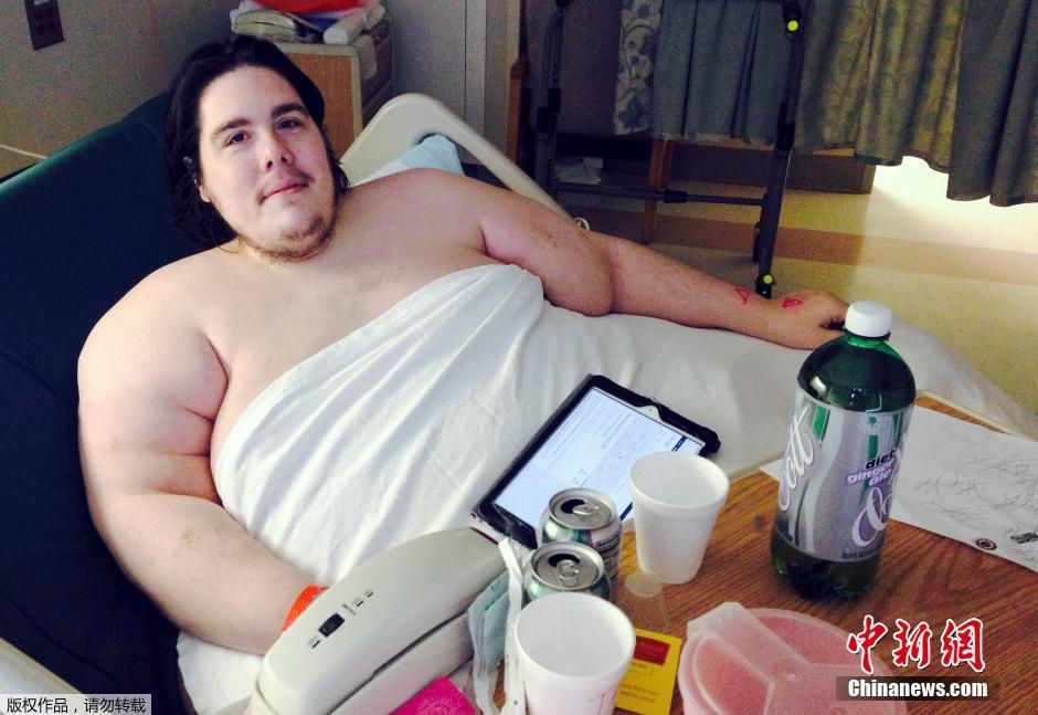 美国720斤胖子因减肥时偷吃被医院赶出门